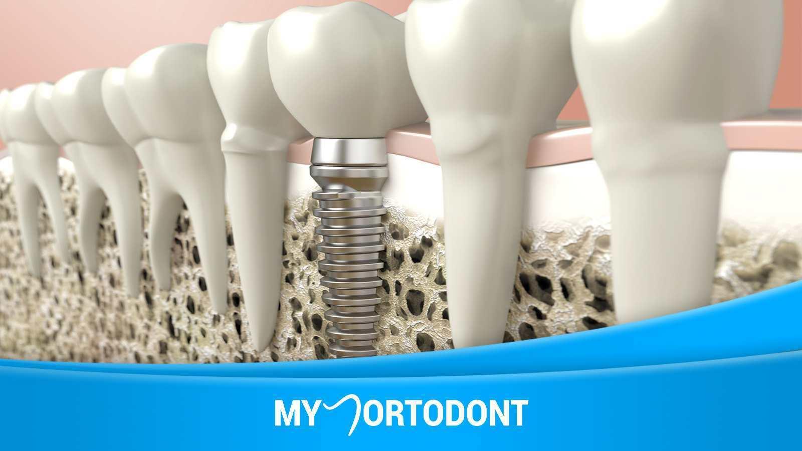 Акция на имплантацию протезирование зубов