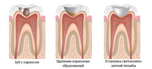 этапы-установки-пломбы-на-зуб